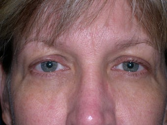 48 year old woman who fells her eyes make her look tired
