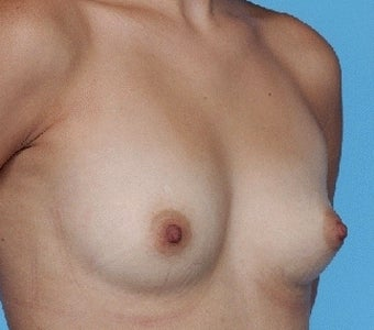 Breast augmentation with Saline implants before 67287