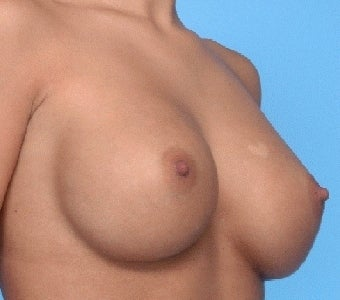 Breast augmentation with Saline implants after 67287