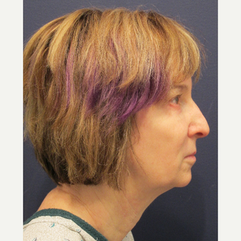 45-54 year old woman treated with Facelift before 3346211
