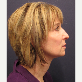45-54 year old woman treated with Facelift after 3346211
