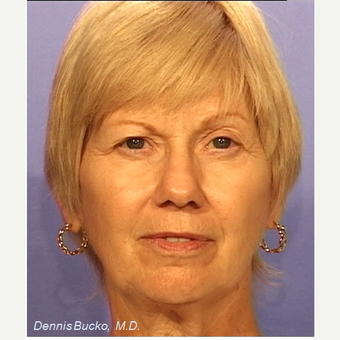 55-64 year old woman treated with Facelift before 3522892