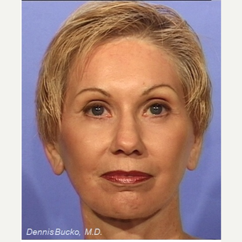 55-64 year old woman treated with Facelift after 3522892