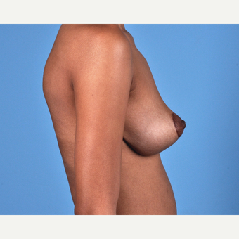 18-24 year old woman treated with Breast Lift after 3837689