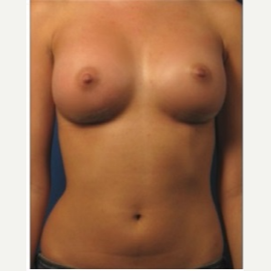 25-34 year old woman treated with Breast Implants after 3326714