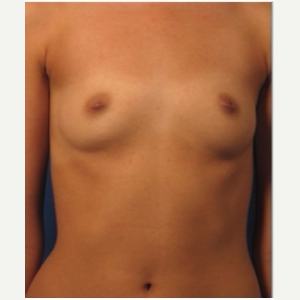 25-34 year old woman treated with Breast Implants before 3326714