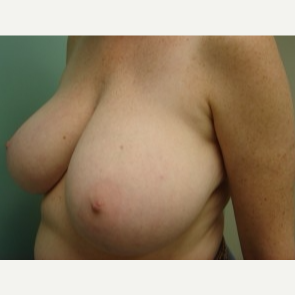35-44 year old woman treated with Breast Augmentation before 3168243