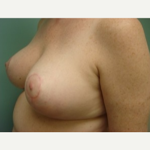 35-44 year old woman treated with Breast Augmentation after 3168243