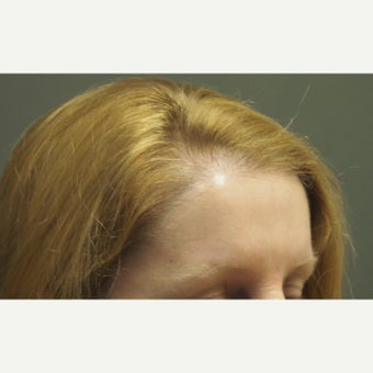 45-54 year old woman treated with Forehead Reduction with Hair Transplant after 1973848