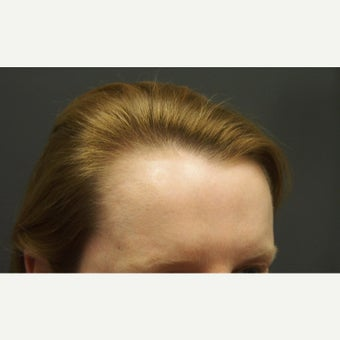 45-54 year old woman treated with Forehead Reduction with Hair Transplant before 1973848