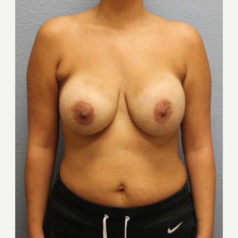35-44 year old woman treated with Breast Implant Revision before 3424154