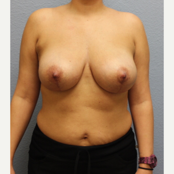 35-44 year old woman treated with Breast Implant Revision after 3424154