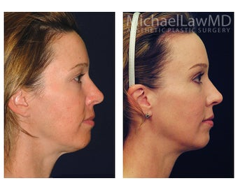 Chin Liposuction before 1256360