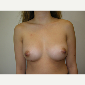 35-44 year old woman treated with Breast Augmentation after 3239283