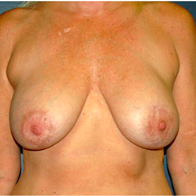 53 year old woman treated with Breast Lift with Implants before 3665987