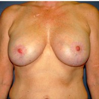 53 year old woman treated with Breast Lift with Implants after 3665987
