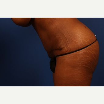 Tummy Tuck after 3743908