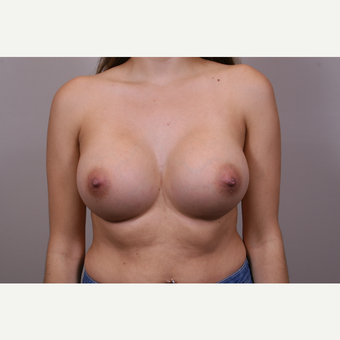 35-44 year old woman treated with Breast Augmentation after 3769347