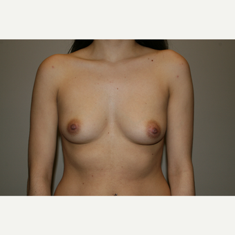 35-44 year old woman treated with Breast Augmentation before 3769347