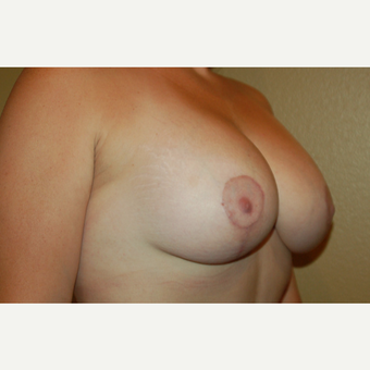 35-44 year old woman treated with Breast Lift with Implants after 3169514
