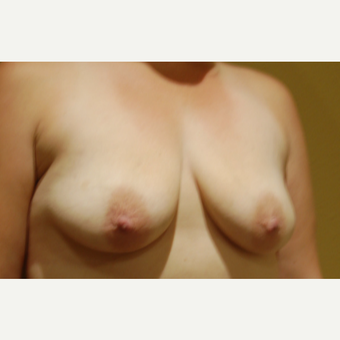 35-44 year old woman treated with Breast Lift with Implants before 3169514