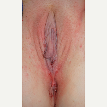 18-24 year old woman treated with Labiaplasty after 3450588