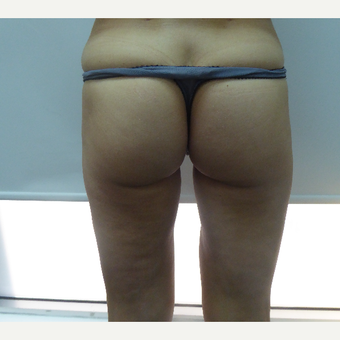 25-34 year old woman treated with Liposculpture after 3501922