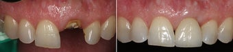 Tooth Implant  before 997165