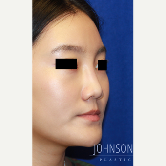 25-34 year old woman treated with  Rhinoplasty before 3744745