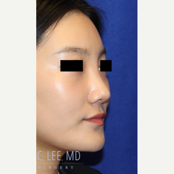 25-34 year old woman treated with  Rhinoplasty after 3744745