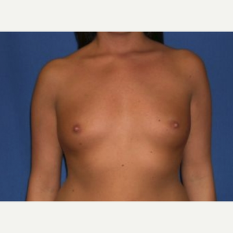 25-34 year old woman treated with Breast Augmentation before 3219963