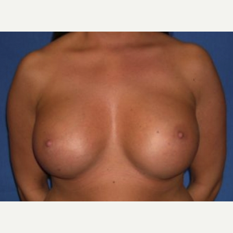 25-34 year old woman treated with Breast Augmentation after 3219963
