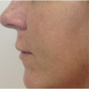 Voluma and Juvederm after 2184629