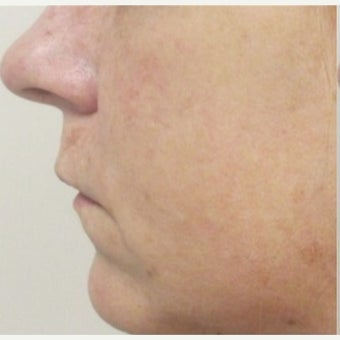 Voluma and Juvederm before 2184629