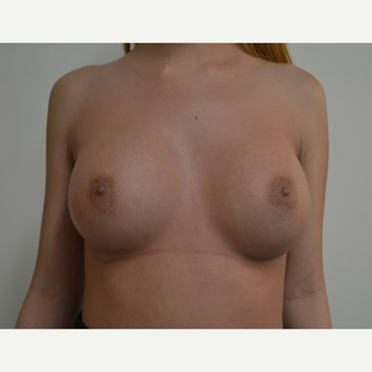 18-24 year old woman treated with Breast Augmentation after 3816412