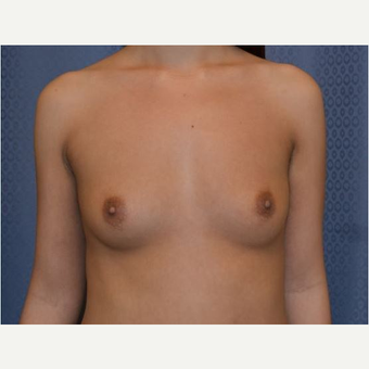 18-24 year old woman treated with Breast Augmentation before 3816412