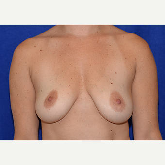 25-34 year old woman treated with Breast Lift with Implants before 3060974