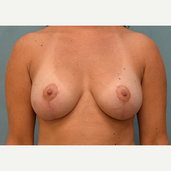 25-34 year old woman treated with Breast Lift with Implants after 3060974