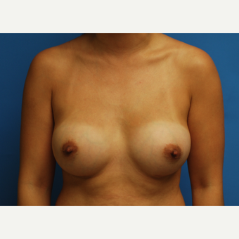 32 year old woman treated with Breast Augmentation using Ideal Implants after 3379773