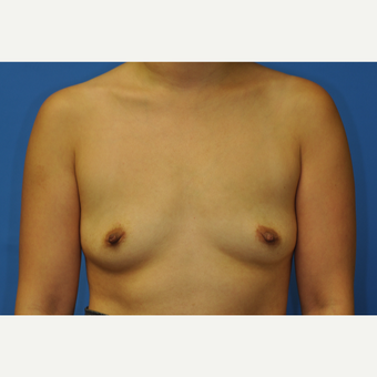 32 year old woman treated with Breast Augmentation using Ideal Implants before 3379773