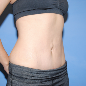25-34 year old woman treated with Mini Tummy Tuck after 3763172