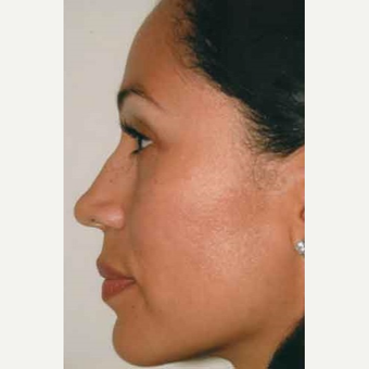 35-44 year old woman treated with Rhinoplasty after 3406197