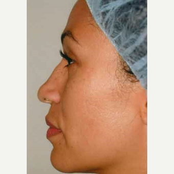 35-44 year old woman treated with Rhinoplasty before 3406197