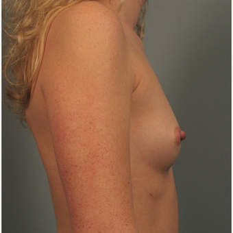 25-34 year old woman treated with Breast Augmentation before 3344441