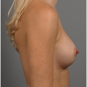 25-34 year old woman treated with Breast Augmentation after 3344441