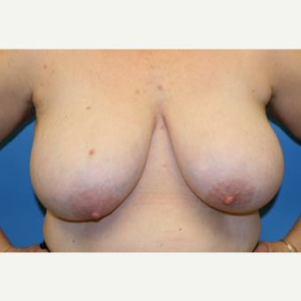 45 year old woman treated with Breast Reduction before 3582109