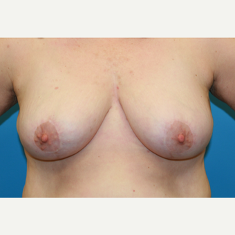 45 year old woman treated with Breast Reduction after 3582109
