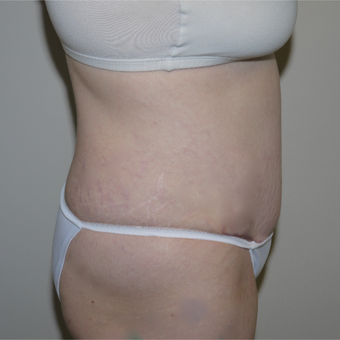 25-34 year old woman treated with Tummy Tuck after 3062479