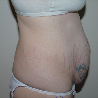 25-34 year old woman treated with Tummy Tuck before 3062479
