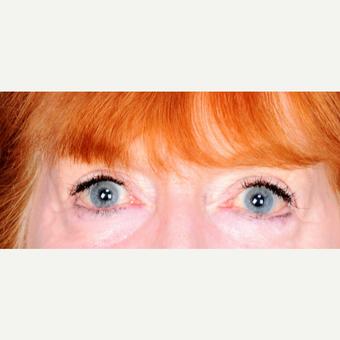 62 year old woman treated with upper eyelid blepharoplasty after 3839230